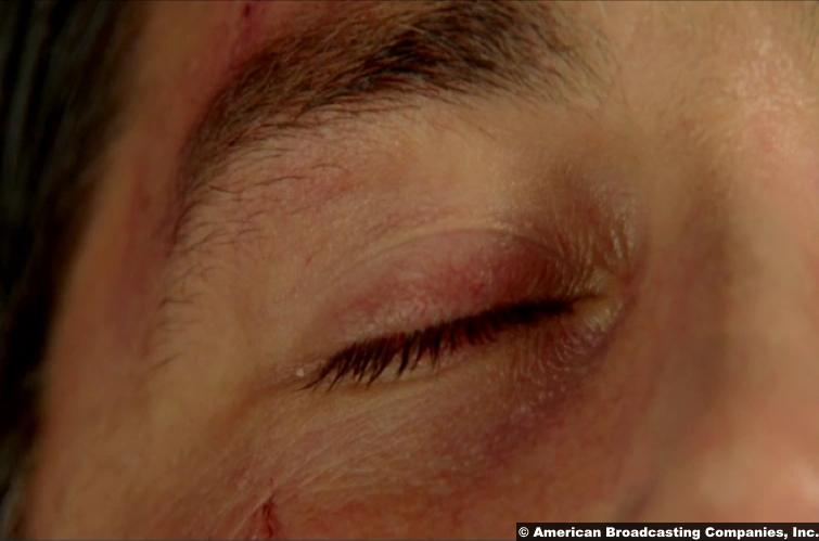 Lost Finale Matthew Fox Jack Shephard Eye