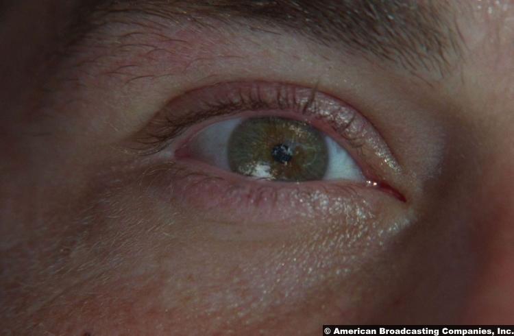 Lost S01e01 Matthew Fox Jack Shephard Eye