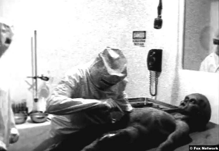 Fox Alien Autopsy 1995